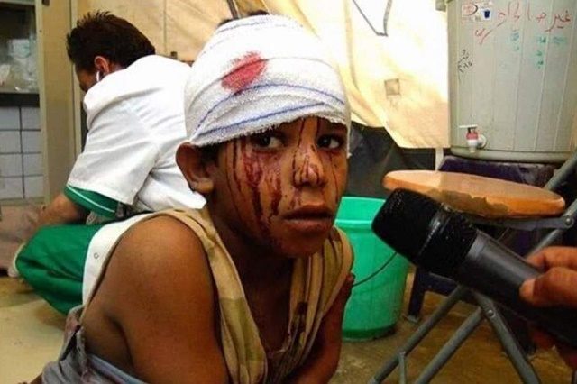 August 2016: An injured child admitted by MSF north of Yemen. (Credit: Hussain Albukhaiti/ABC Australia)