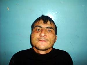 Rasul Kudaev_October 2005 (after being tortured) (1)
